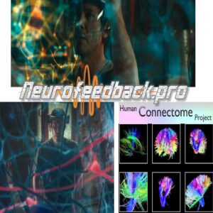 Conectoma y NF